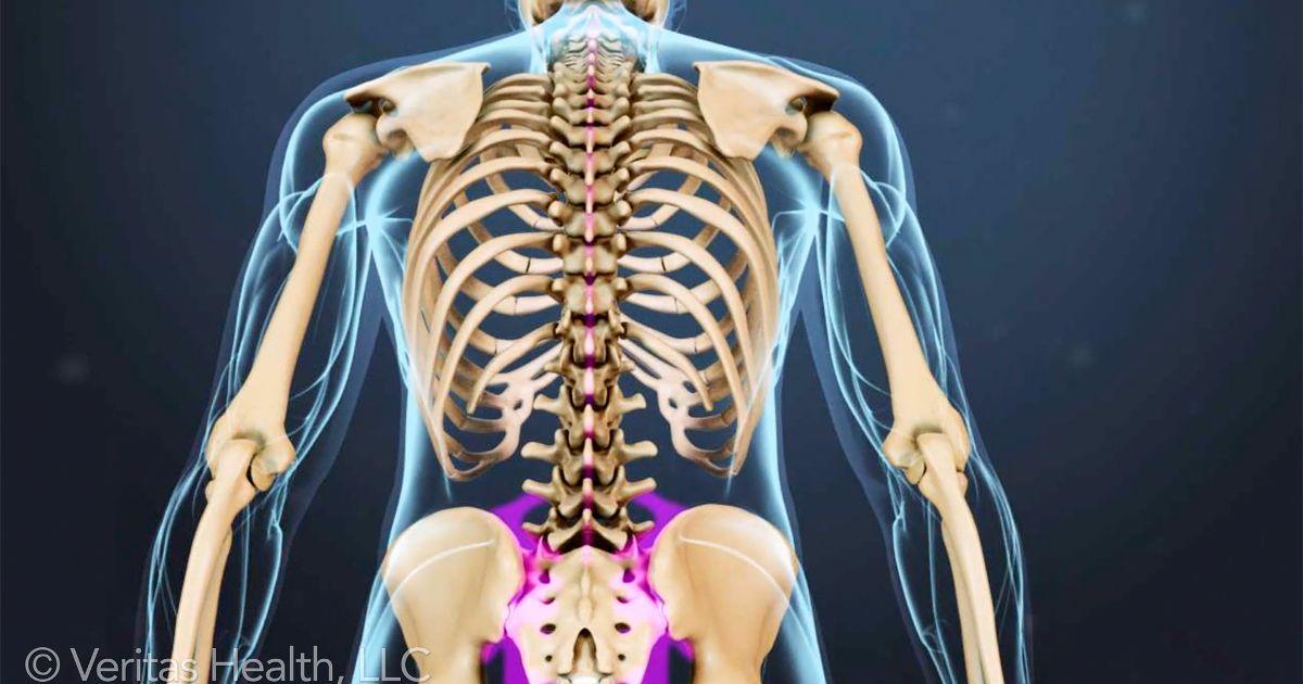Спондилоартроз - артроз позвоночника: шейный, грудной и поясничный отделы